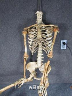 AUTHENTIC ANTIQUE Anatomical HUMAN SKELETON DISPLAY MODEL for MEDICAL SCIENCE