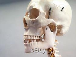 Anatomisches lebensgroßes Skelett #AI