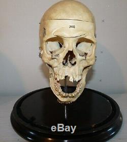 Antique Darwin L Platt Real Human Skull Medical Dental Teaching Rochester NY